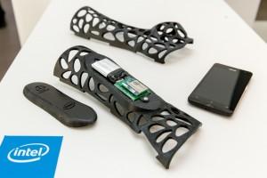Smart Splint, die Armschiene aus dem 3D-Drucker.